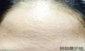 如何去除额头的粉刺?