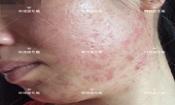 激素脸、满脸粉刺痘痘,到光滑健康肌肤的蜕变!